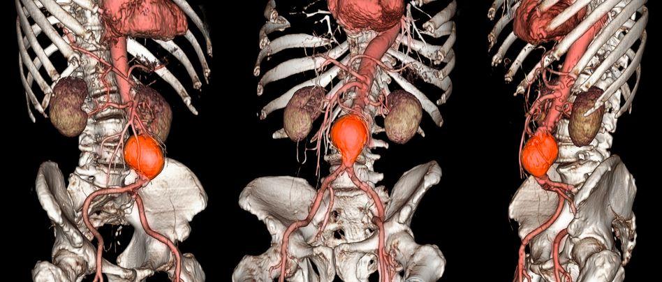 Dreidimensionale CT-Aufnahme: Erweiterte Hauptschlagader unterhalb der Nieren