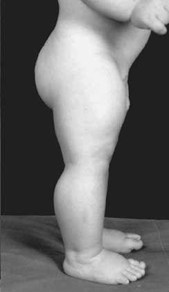 Strammes Kerlchen: Muskel-Baby im Alter von neun Monaten