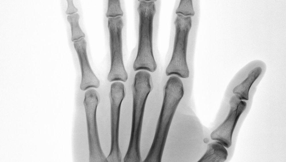 Evolution: Alles aus einer Hand