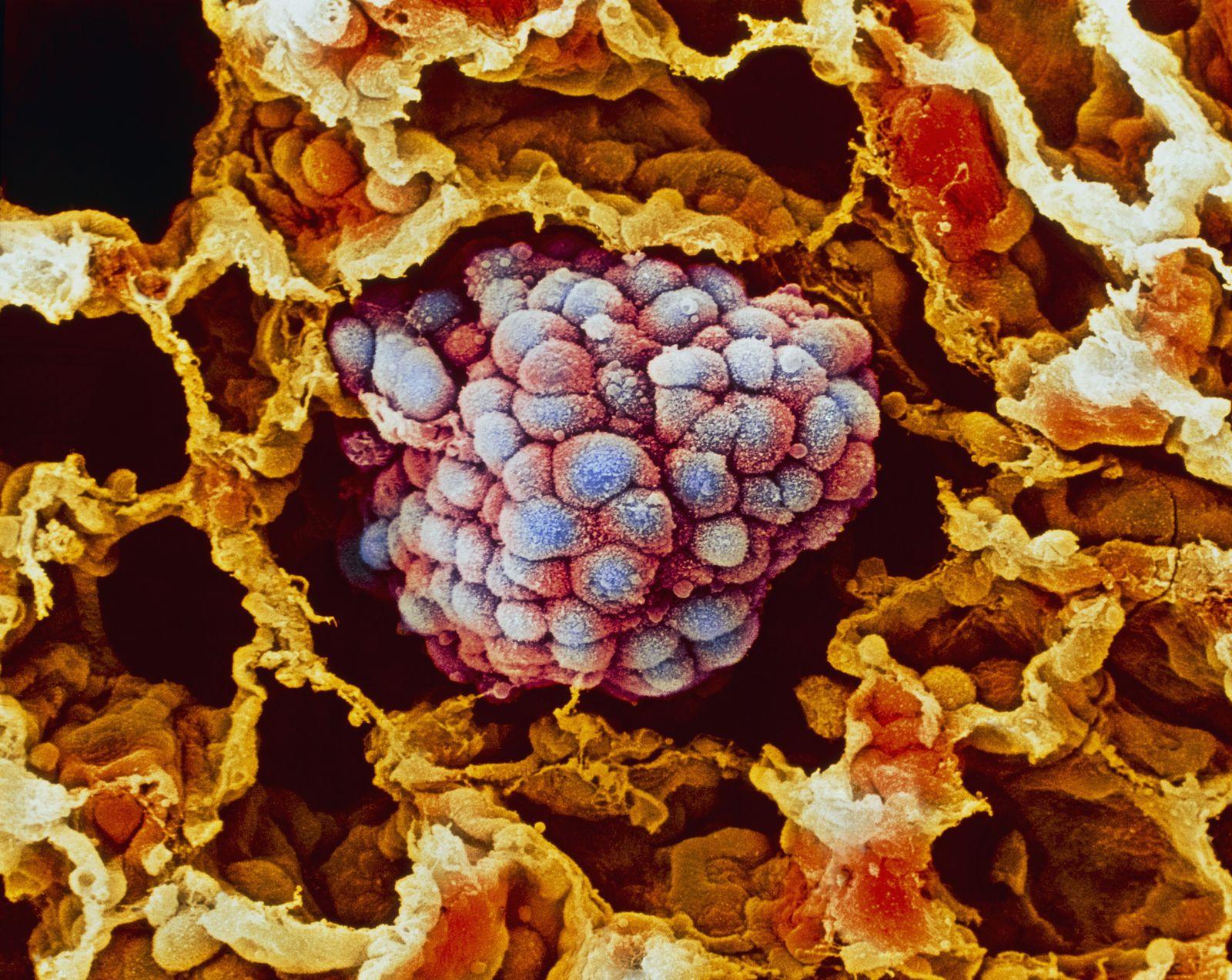 NICHT MEHR VERWENDEN! - Lungenkrebs / Tumor