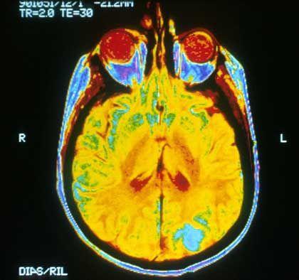 Gehirn mit Metastasen (hellblaue Bereiche): In seltenen Fällen verschwinden die Tumoren ohne Therapie