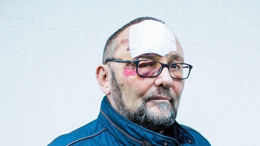 """Gewaltopfer Magnitz: """"Ich wollte dokumentieren, was passiert ist"""""""