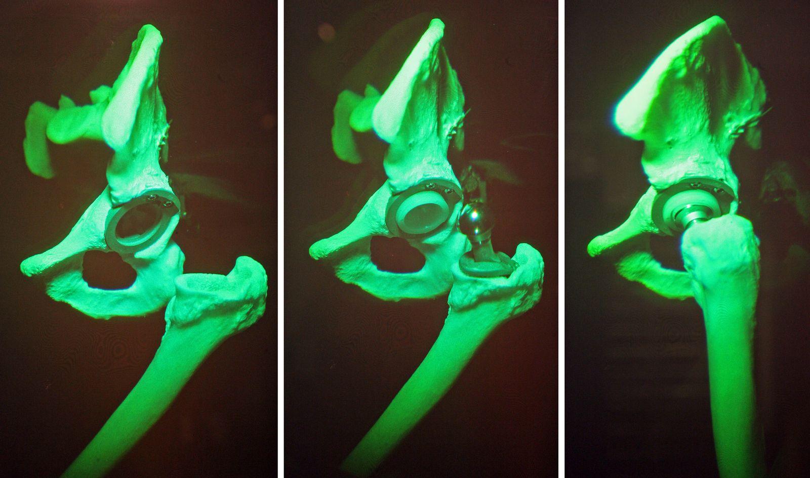 Hüftprothese Hüftimplantate