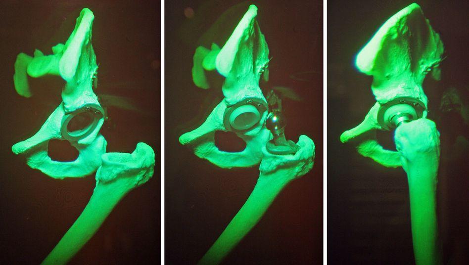 Hüftgelenk mit Prothese: Metallimplantate halten nicht so lang wie andere Modelle