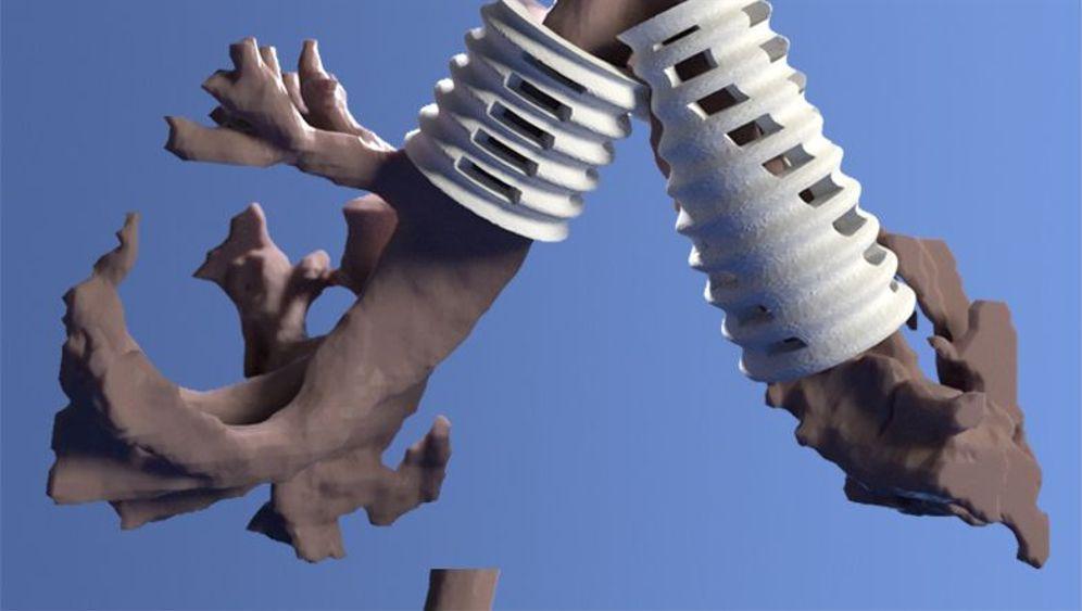 Implantate für die Atemwege: Lebensretter aus dem 3D-Drucker