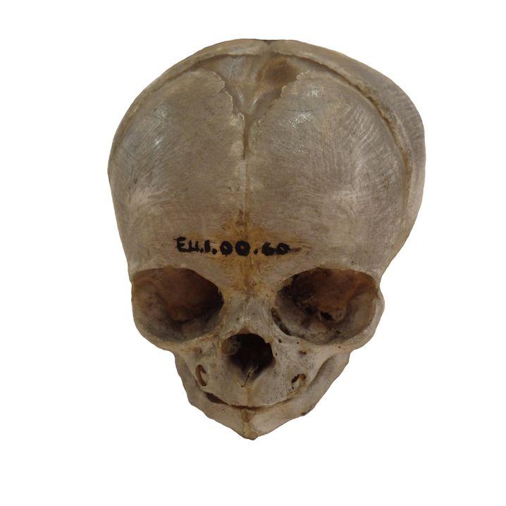 Mit Ziffern versehener Schädel (aus dem University of Cambridge Anatomy Museum)