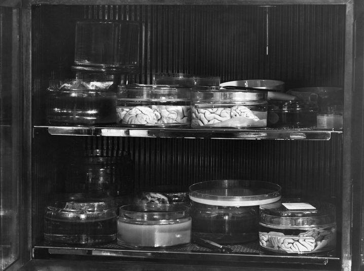 Gehirnpräparate um 1930