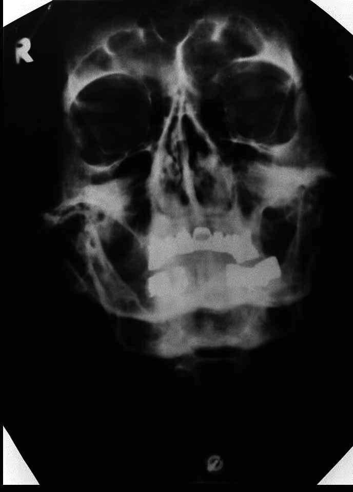Hitler / vermeintlicher Totenschädel / Röntgenaufnahme