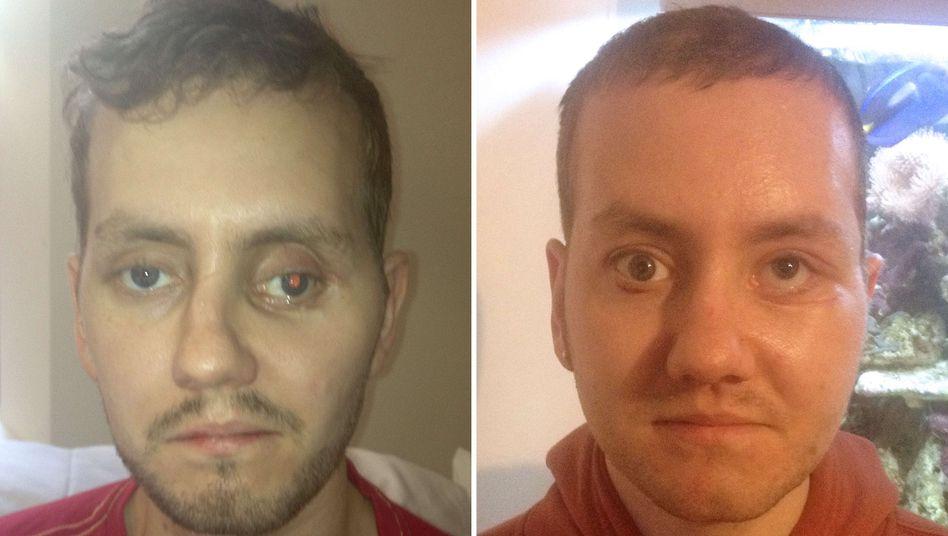 Knochenersatz: Chirurgen reparieren Gesicht mit Teilen aus 3-D-Drucker