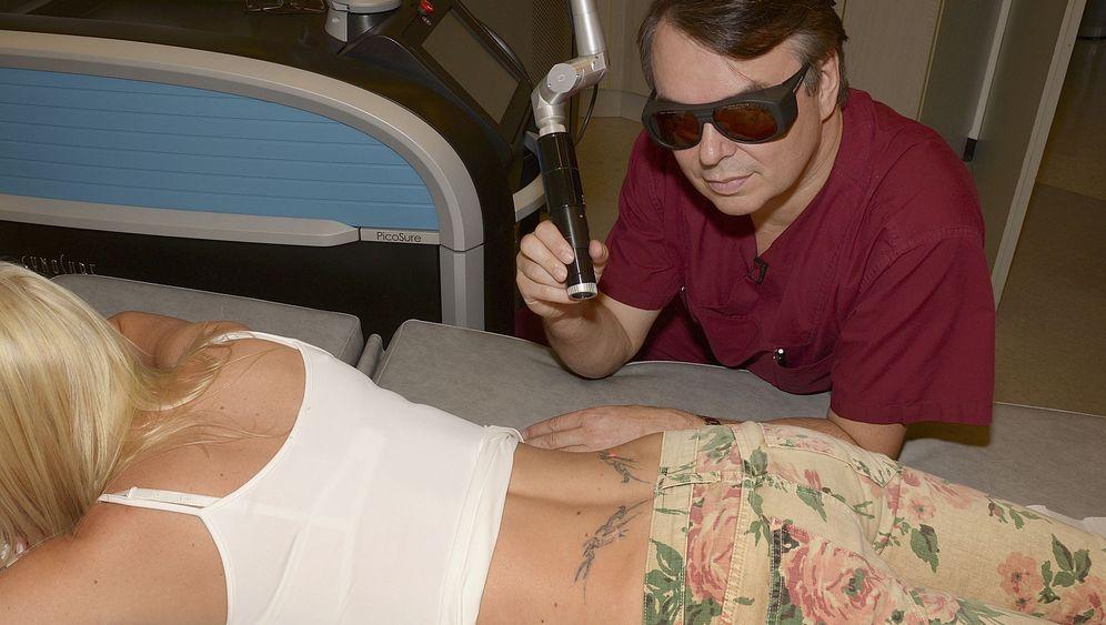Tattoo-Entfernung: Wachsender Kostenfaktor, ungeklärtes Risiko