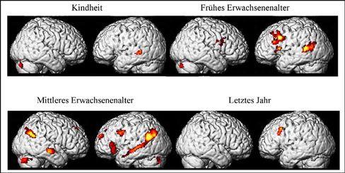 Hirnscan: Größte Aktivität bei Erinnerungen an frühes und mittleres Erwachsenenalter