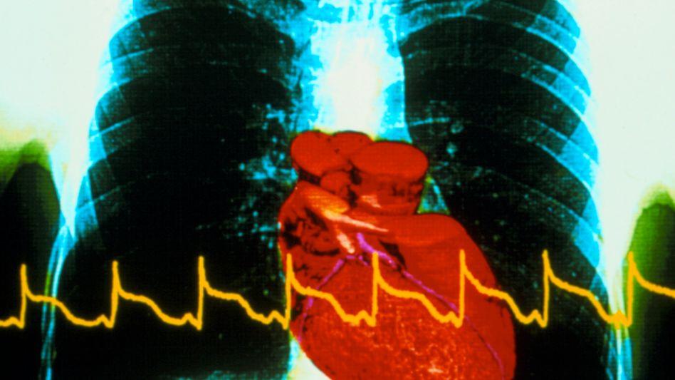 EKG-Zeichen eines Infarktes: Die Gefahr, an Herz-Kreislauf-Erkrankungen zu sterben, ist in Europa höchst ungleich verteilt