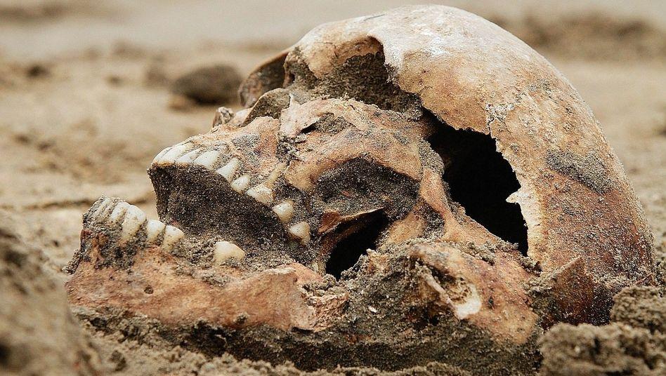 """Schädelfund:""""Kaum ein Skelett ist frei von krankhaften Veränderungen"""""""