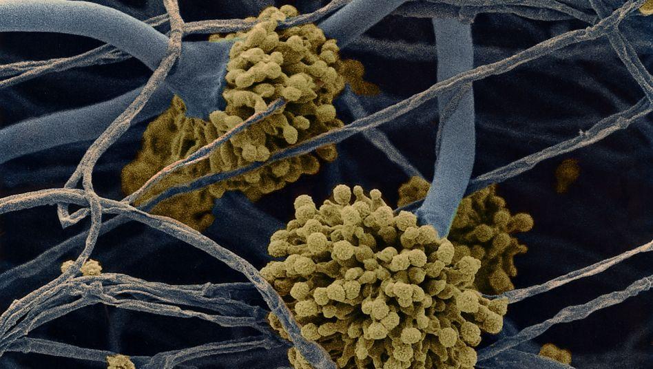 Schimmelpilz Aspergillus Niger in extrem Vergrößerung: Die Gefahr durch Schimmel ist nicht immer sichtbar