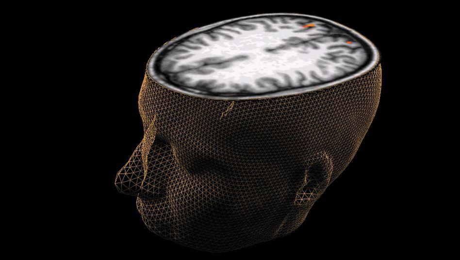 Gehirn (Grafik): Gehirnerschütterung ist eine milde traumatische Gehirnverletzung