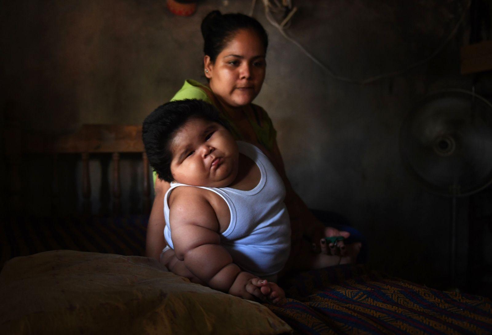 MEXICO-HEALTH-CHILD-OBESITY
