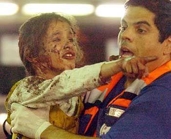 Verletztes israelisches Kind (am 19. August): Der Terroranschlag sollte Kinder treffen