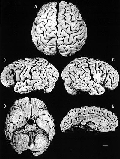 Einsteins Hirn: Der mathematisch-logische Hirnbereich ist größer als normal
