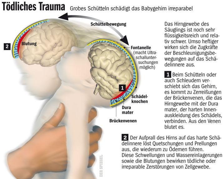 Grafik (zum Vergrößern bitte klicken): Wie grobes Schütteln das Hirn eines Babys schädigt
