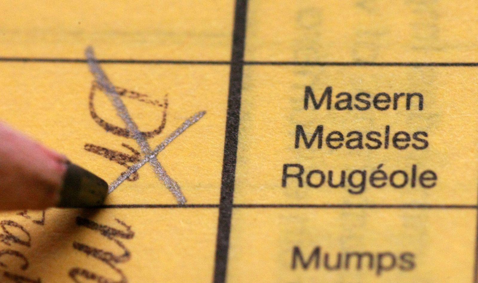 Impfung / Masern