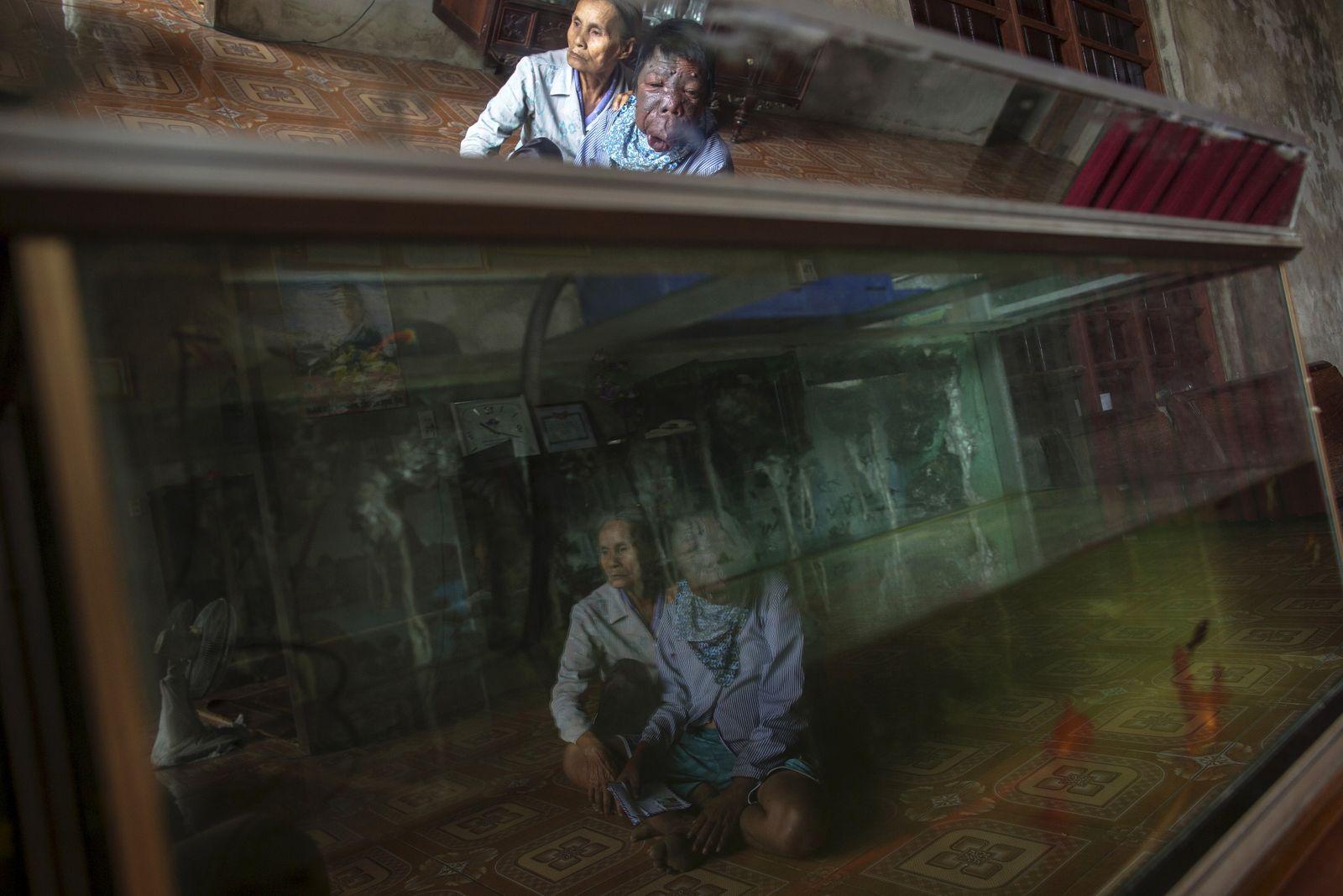 Wider Image: Vietnam: The Legacy Of Agent Orange