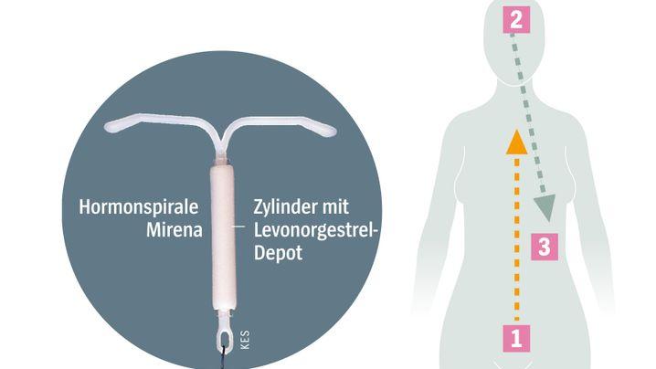 Entfernung mirena hormonumstellung nach Mirena Spirale