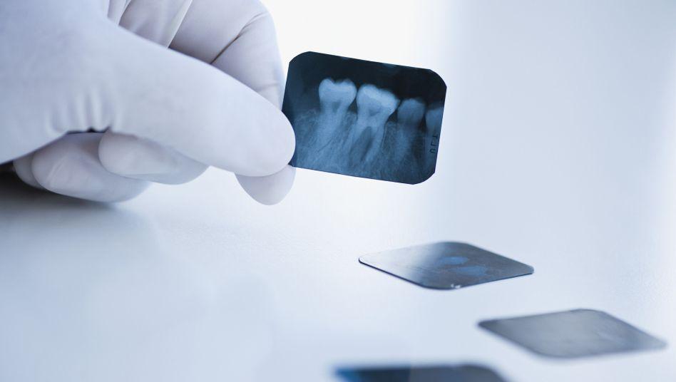 Röntgenaufnahme von Zähnen: Forscher warnen vor Strahlenbelastung.