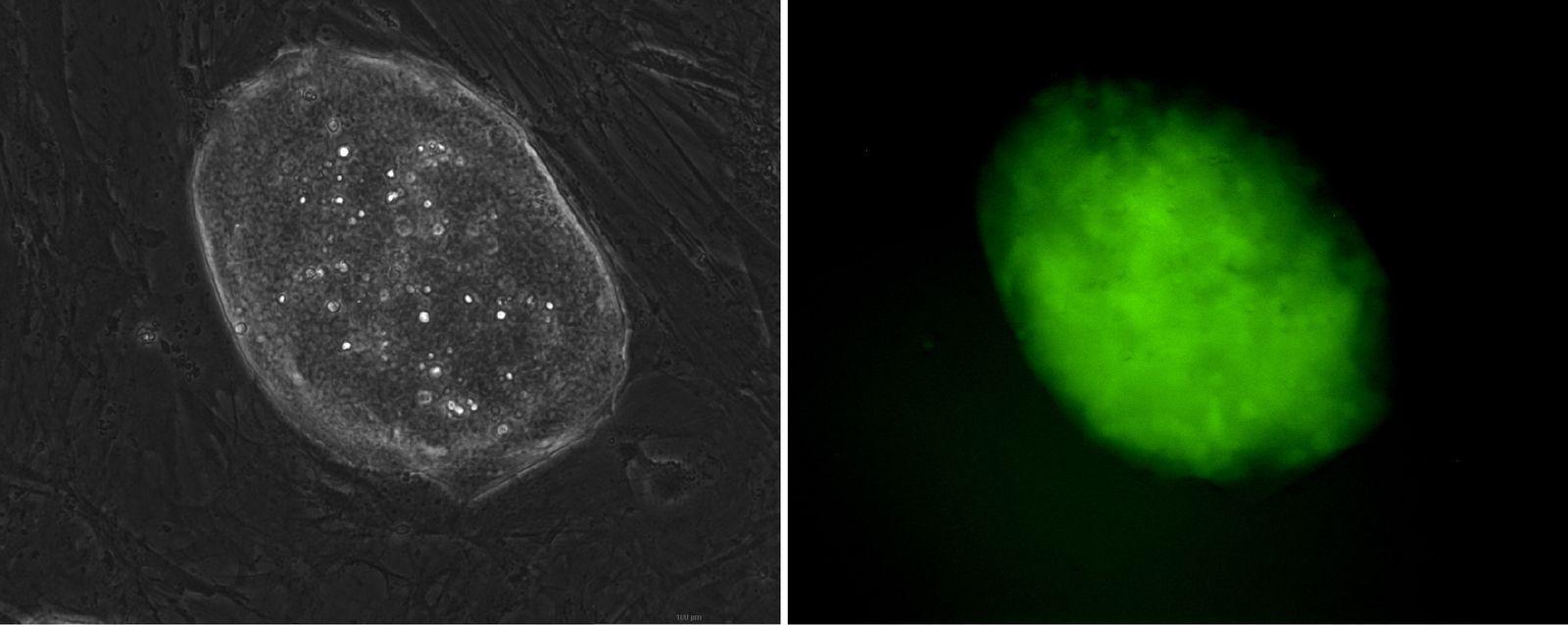 EINMALIGE VERWENDUNG IPS Zellen