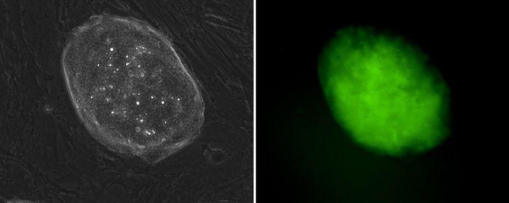 Alleskönner: Durch Genmanipulation verlieren Zellen ihre Spezialisierung