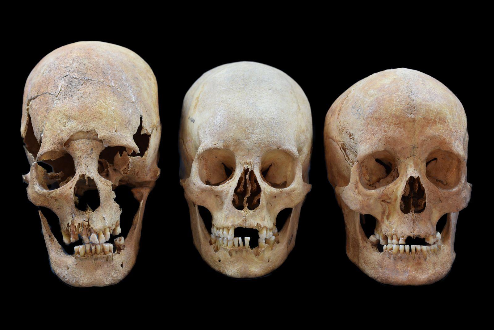 EINMALIGE VERWENDUNG A Deformed, Intermediate, and Non-deformed Human Skull
