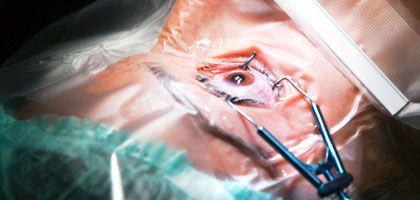 """Vorbereitung für eine Laser-Behandlung: """"Wundheilungsprozesse mit Trübungen und Narben"""""""