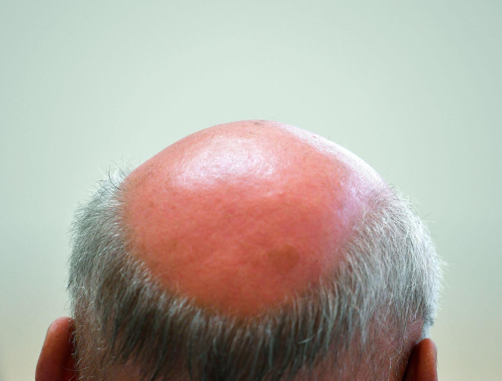 Nebenwirkungen / Haarwuchsmittels