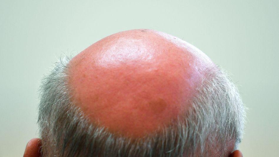 Der Wirkstoff Finasterid soll Haarausfall verhindern, kann aber heftige Nebenwirkungen haben