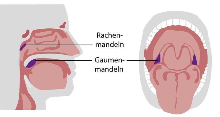 Mandeln sind eine Ansammlung von lymphatischem Gewebe. Sie spielen eine wichtige Rolle bei der Immunabwehr.