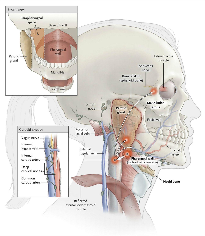 EINMALIGE VERWENDUNG Rätselhafter Patient/ Lemierre-Syndrom