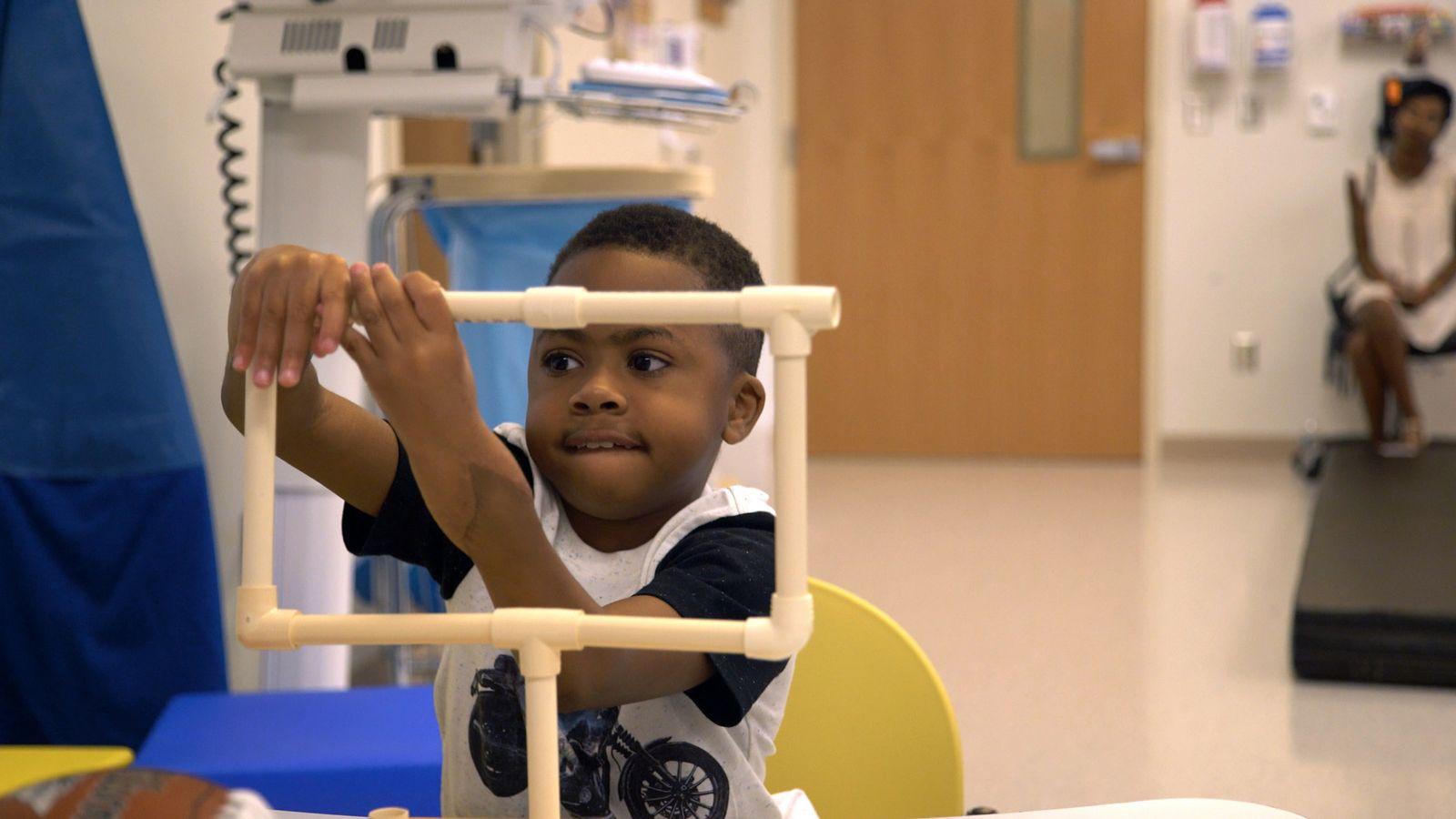 Ärzten gelingt Doppeltransplantation von Händen bei Kind