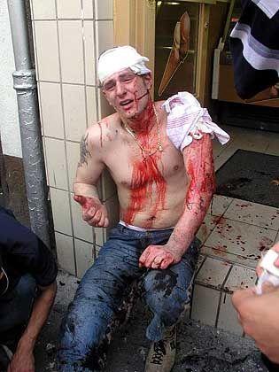 Blut und Splitter: Polizei ermittelt in alle Richtungen