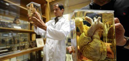 Präparierte Herzen (Anatomie-Sammlung der Universität in Frankfurt am Main): Ansturm von willigen Körperspendern