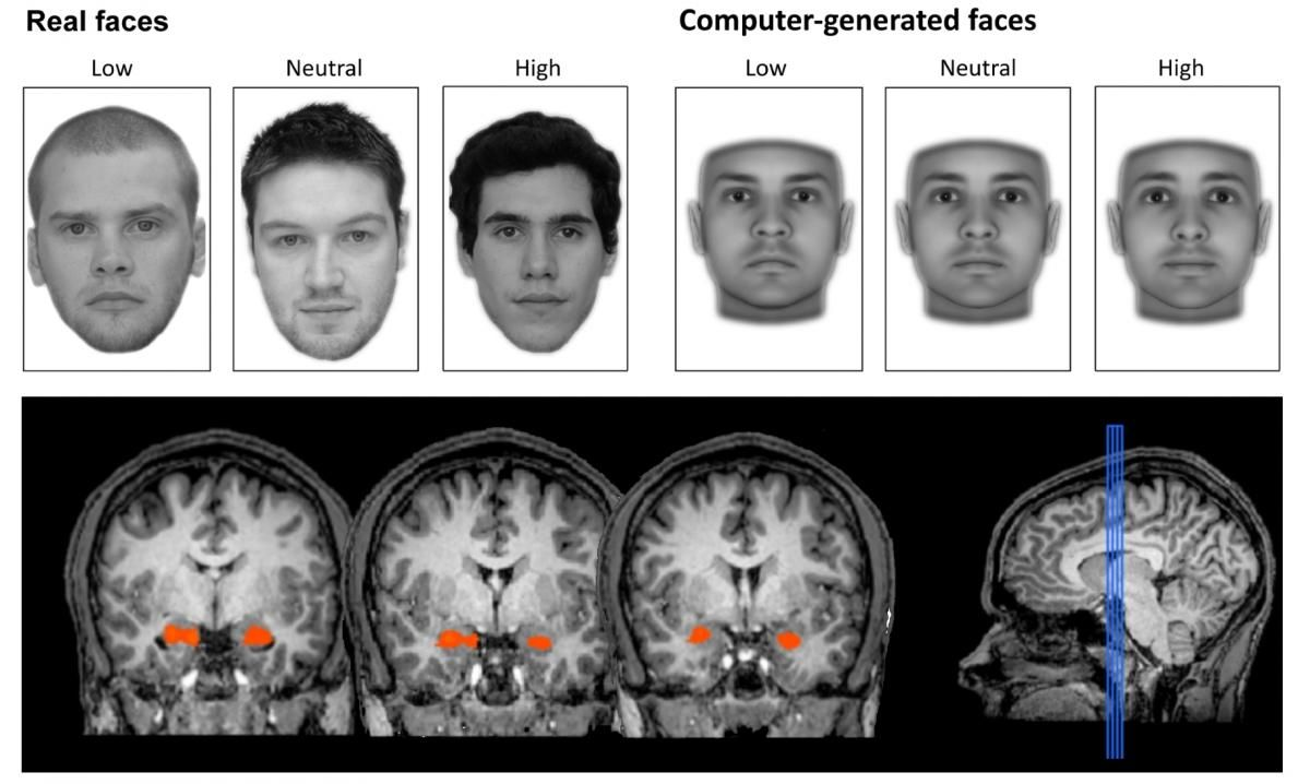 EINMALIGE VERWENDUNG Gehirnforschung