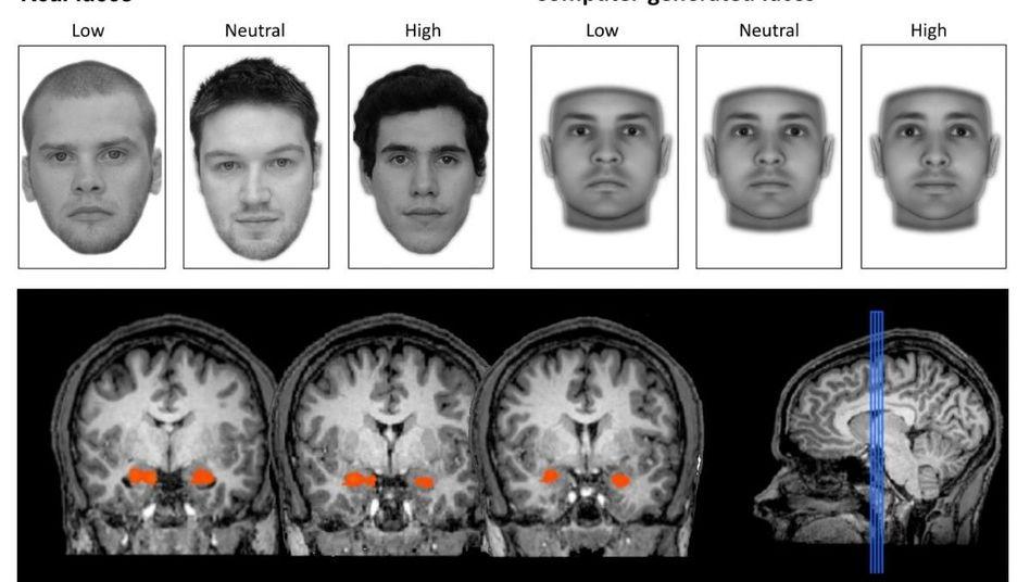 Schnelle Reaktion: Den Probanden wurden echte und künstliche Gesichter gezeigt. Die Amygdala (orange) reagierte stärker auf die weniger vertrauenswürdigen
