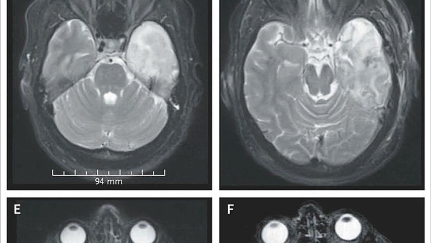 Kernspin-Bilder der Patientin: Was geht im linken Schläfenlappen (im Bild mittig rechts und weißlich zu sehen) vor sich?