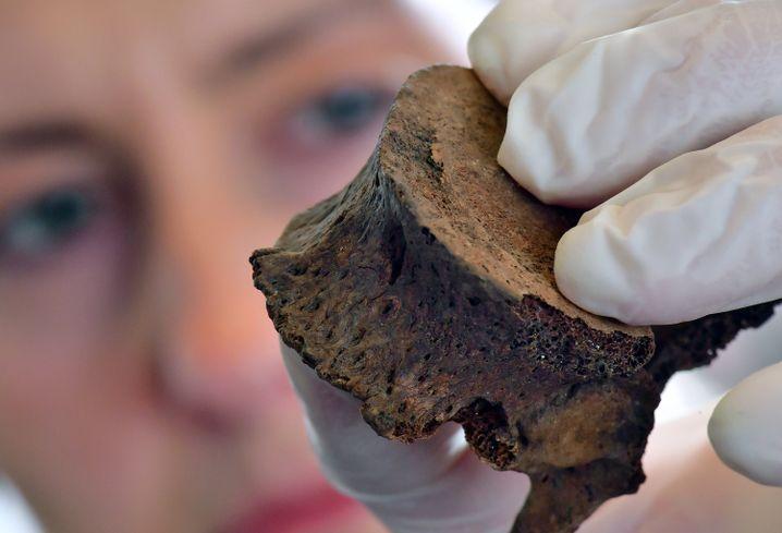 Nicole Nicklisch zeigt den verletzten elften Brustwirbel des Fürsten von Helmsdorf