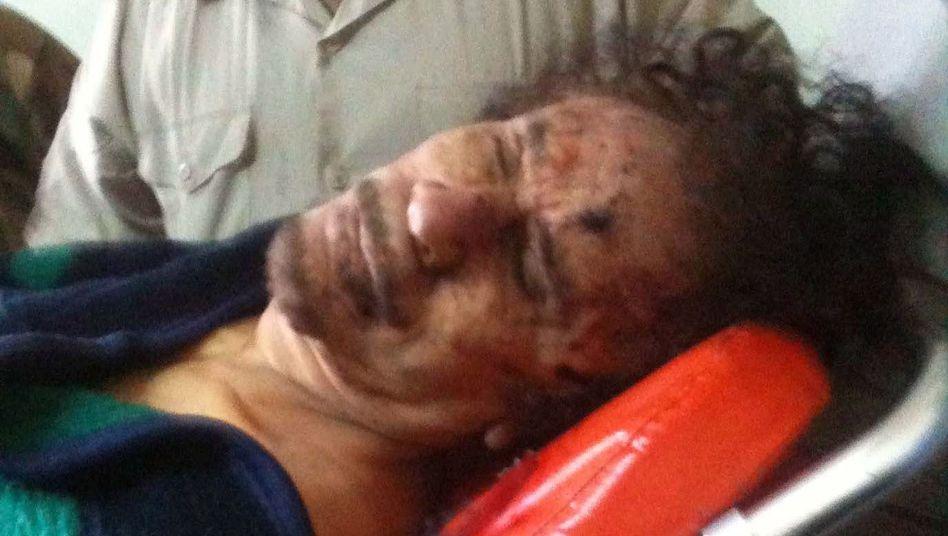 Muammar Gaddafi auf dem Weg ins Krankenhaus: Finale Diagnose