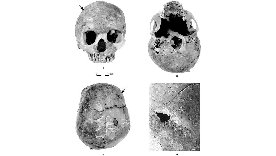 Der Schädel von Skelett Qafzeh 11: Auf der rechten Seite ist die verheilte Bruchstelle zu sehen (siehe Pfeil).