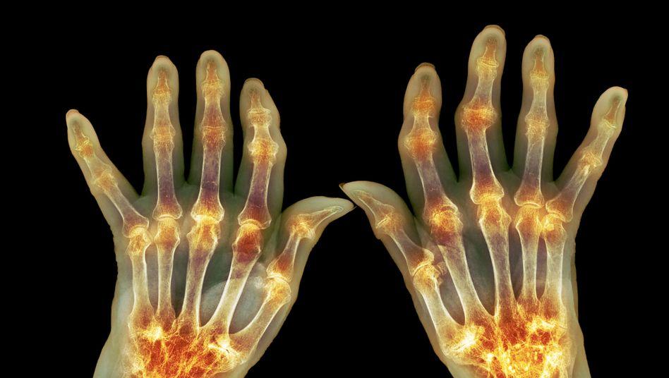 Arthritis in den Fingern (eingefärbtes Röntgenbild): Viele denken, dass Knacken die Gelenke verschleißt