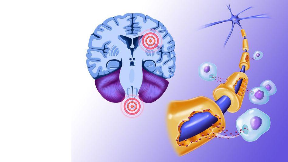 Multiple Sklerose: Durch die Schädigungen der Nerven können Beschwerden im ganzen Körper auftreten