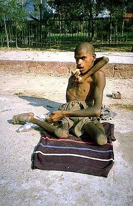 Gelenkiger Bettler in Indien: Bei den Bettlern können die Gläubigen durch Spenden Karma-Punkte fürs Nirvana sammeln. Indien ist das wahrscheinlich einzige Land der Erde, in dem die Bettler manchmal streiken