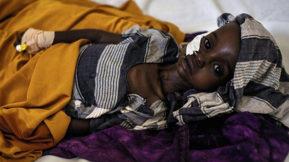 Hungerndes Kind im Krankenhaus von Burao, Somaliland: Keine Kraft zu schreien oder zu weinen