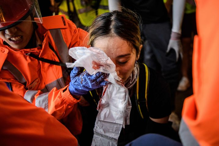 "Medics assist a woman who suffered a facial injury during the police deployment: ""Images like that frighten many people,"" says activist Wong Yik-mo."