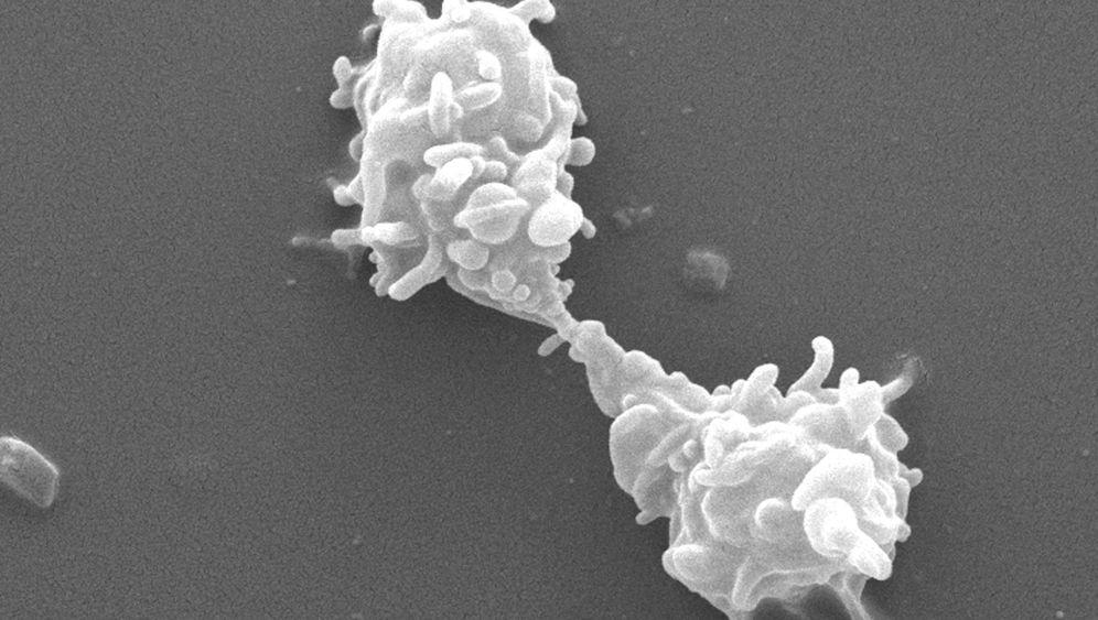 Hornhautfresser: Parasiten im Auge
